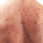 skin-cancer