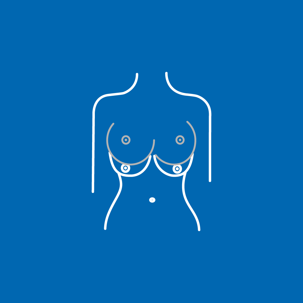 breast_correction